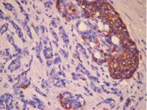 A new biomarker will help in diagnostic pancreatic cancer.